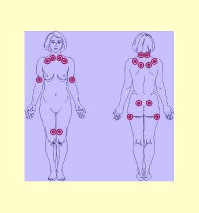 Dolor de fibras musculares - Artículo informativo de Rafael Sánchez - Naturópata