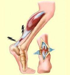 Inflamación de los tendones - Artículo informativo de Rafael Sánchez - Naturópata