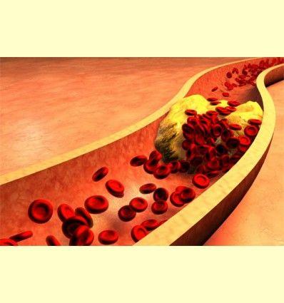 El Colesterol - Artículo informativo de Rafael Sánchez - Naturópata