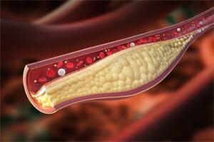 El Colesterol, una cuestión de equilibrio