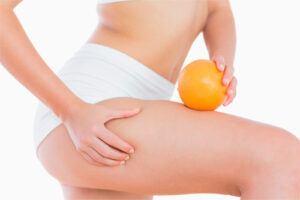 Celulitis: Definición, Causas y Consejos