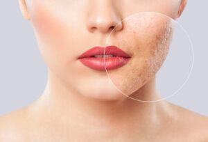 Cuidar la piel con 5 consejos naturales