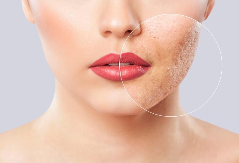 cuidar-la-piel-de-manera-natural-consejos-cosmetica-natural
