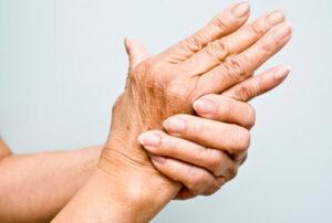 Artritis: inflamación y dolor en las articulaciones
