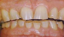 Apretando los dientes - Articulo informativo