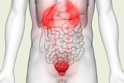 El uso de D-manosa en la prevención y tratamiento de infecciones recurrentes del tracto urinario