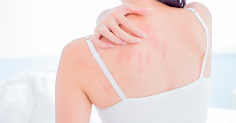 alteraciones-de-la-piel-por-mala-alimentacion-nervios-problemas-de-piel-consejos